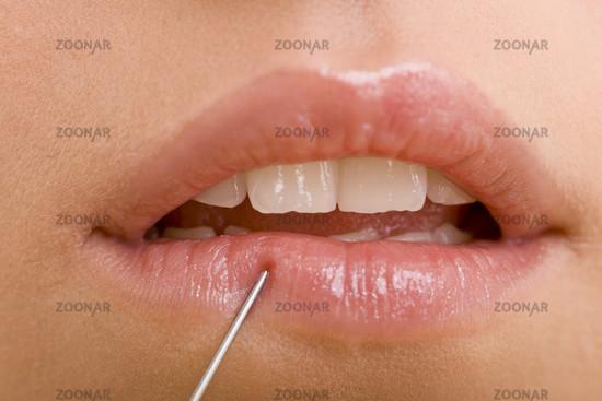 Spritzenspitze an Lippen