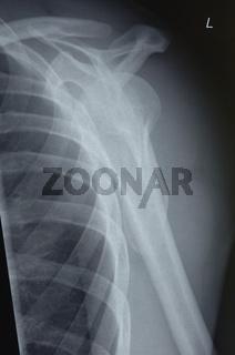 Schultergelenk - Röntgenbild
