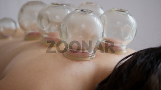 Tibetan medicine - a lot of glass cup on the back of a woman, slider shot