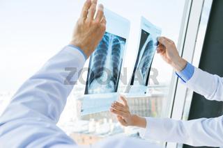 Doctors discuss x-ray