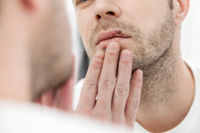Young man suffering from painful herpes on his mouth