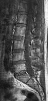 CT scans of human spine