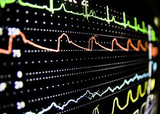 Ekgmonitor ecg monitoring