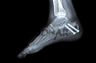 Röntgenaufnahme nach Osteosynthese