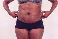 Frau kneift in das Fett an der Taille