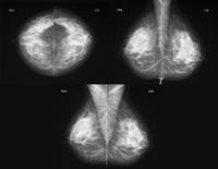 Mammography in three projections