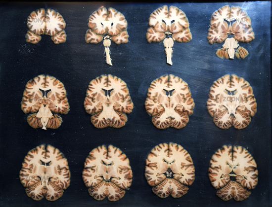 Foto Präparat, Plastinat, Querschnitte durch das menschliche Gehirn ...
