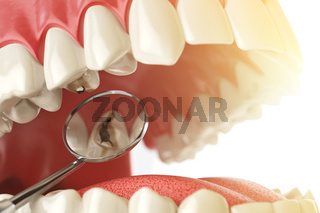 Human tooth with caries, hole and tools. Dental searching concept. Teeth or dentures.
