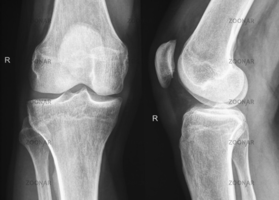 Right knee X-Ray - Röntgen rechtes Knie