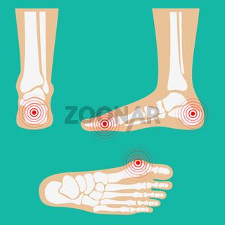 Human leg pain zones.