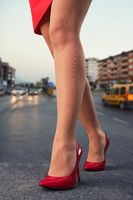Red skirt and shooed
