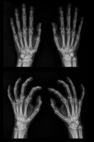 X-ray of both hands