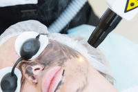 Close-up carbon face peeling procedure. Laser pulses clean skin of the face. Hardware cosmetology treatment. Process of photothermolysis, warming the skin, laser carbon peeling. Facial skin rejuvenation.