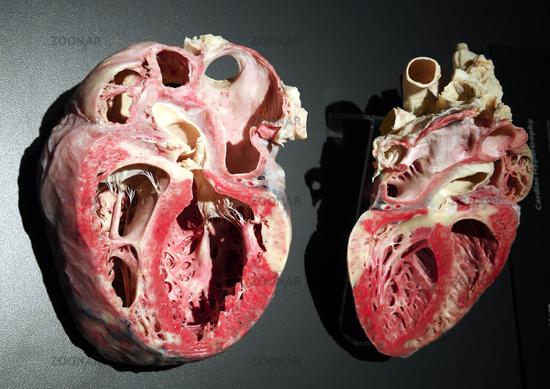 Foto Präparat, Plastinat, stark vergrößertes menschliches Herz, Mens ...