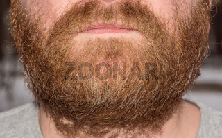 Closeup image of the red beard.