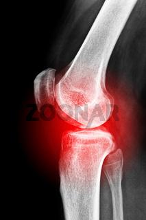 Schmerzhaftes Kniegelenk