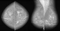 Mammografie bei Brustkrebs in 2 Ebenen