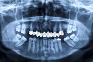 Röntgenaufnahme geschädigter Zähne