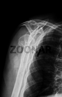 Oberarmfraktur rechts, Röntgenaufnahme axial