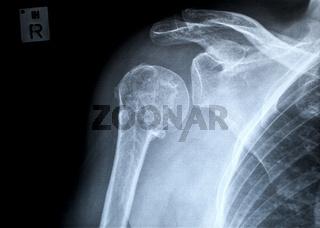 Oberarmfraktur rechts, Röntgenaufnahme ap