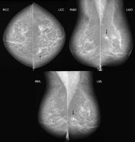 Mammografie bei Brustkrebs in 3 Ebenen