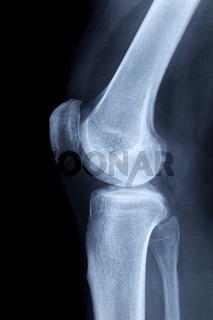 Linkes menschliches Knie, Röntennormalaufnahme