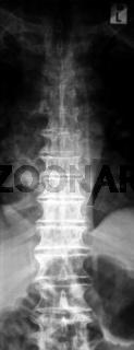 Brustwirbelsäule, Röntgenaufnahme ohne Befund