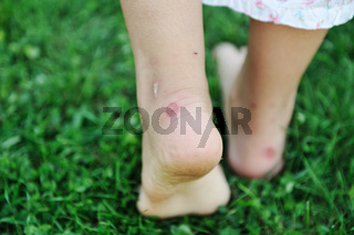 Human walking on grass with callus on feet