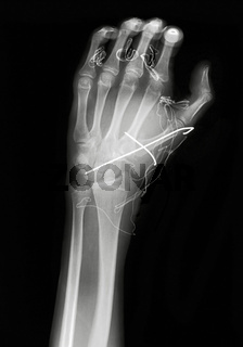 X ray image of hand