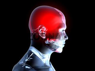 Headache - Anatomy