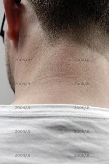 Foto Nacken Eines Mannes Bild 4858755