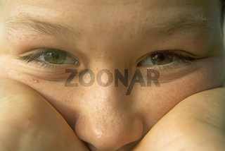 Zwölfjähriger Junge, beginnende Gesichtsakne, Pubertät