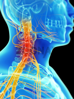 3d rendered illustration of painful neck nerves