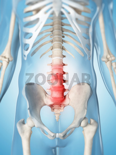 3d rendered illustration of a painful lumbar spine