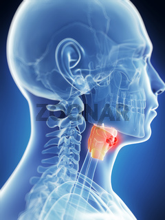 3d rendered illustration of the male larynx - cancer