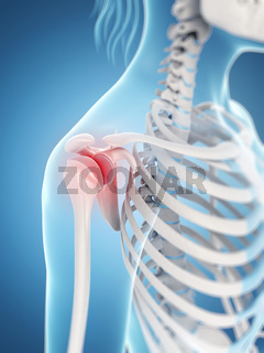 inflamed shoulder joint