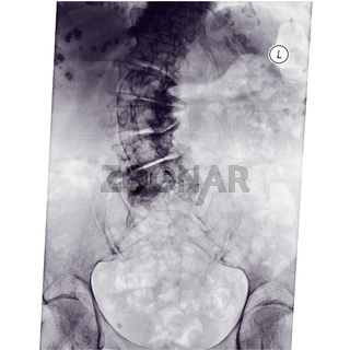 spine scoliosis of elderly woman