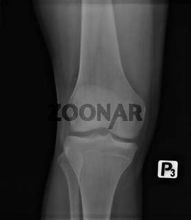 X-ray radiology scanned image of young man leg