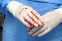 Chirurgen Hände