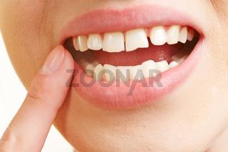 Frau mit Zahnfleischentzündung im Mund