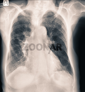Radiology chest x-rays