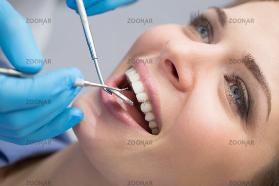 Dentist examining a patient#39;s teeth in the dentist.