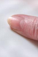 Fingernagel, Anatomie der Hand, Daumen, Details