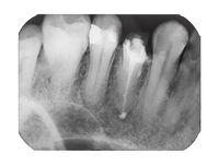 X-ray image of human teeth with dental pin