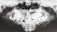 human jaws on X-ray image