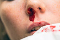 Wound nosebleed, woman bleeding from her nose, nose injury blood and tissue