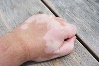 Vitiligo oder Weissfleckenkrankheit