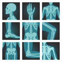 Set of x-ray shots pictures of human body parts, head, wrist, rib cage, foot, spine, knee, cubit, shoulder, vector illustration.