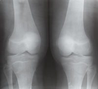 view of two human knee joints on X-ray image