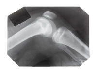 film with X-ray image of knee joint with patella